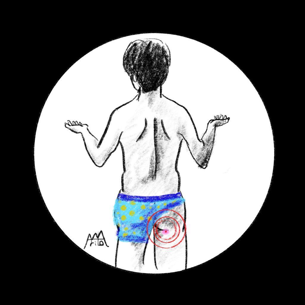 こうやってできるでしょう?粉瘤の治療 ©Arito Art