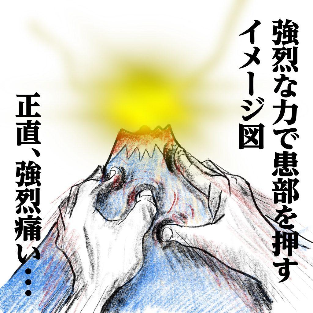 強烈な力で患部から膿を押し出すイメージ図 ©Arito Art